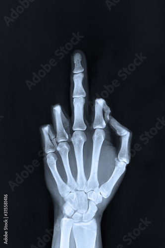 Fotografie, Obraz  Hand sign x-ray of a flipped finger / middle finger sign.