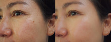 Image Before And After Treatment Rejuvenation Surgery On Face Asian Woman Concept.Closeup Wrinkles Dark Spots Pigmentation Skin On Face Asian Woman.