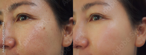 Fotografie, Tablou Image before and after treatment rejuvenation surgery on face asian woman concept