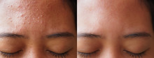 Image Before And After Acne Tr...