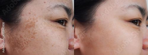 Fototapeta Closeup asian woman face before and after dark spot melasma pigmentation skin facial treatment.Problem skincare and health concept. obraz