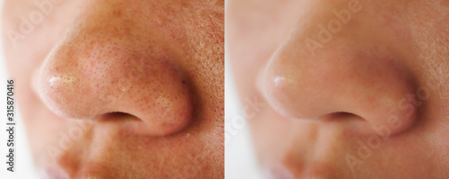 Obraz Image closeup before and after treatment small pimple acne blackheads on skin of  nose and spot melasma pigmentation  on facial Asian woman .Problem skincare and health concept. - fototapety do salonu