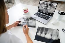 Doctor Looking At Teeth X-ray ...