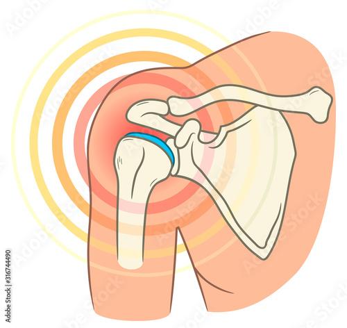 Shoulder joint pain Canvas Print