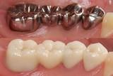 銀歯 セラミックブリッジ