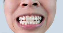 Close-up Of A Smiling Woman's Teeth Revealing White Spots And Plaque On The Tooth Surface. Oral Care And Dental Concept.