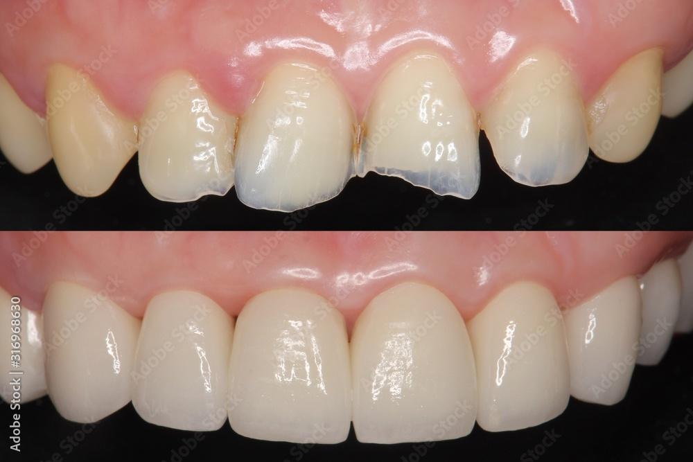 Fototapeta 前歯 審美歯科治療