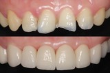 前歯 審美歯科治療