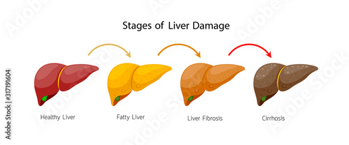Stages of liver damage Canvas Print