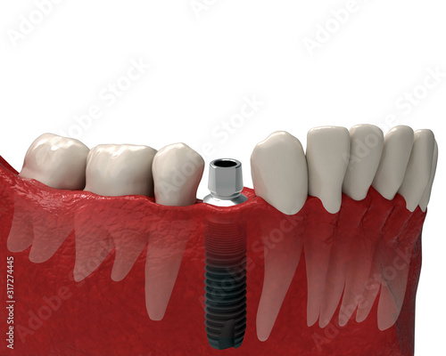 Human Jaw, Gum and Teeth with Installed Abutment and Implant. Realistic 3D Illustration Isolated on White Background. #317274445