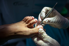 Podiatrist Making Procedure Wi...