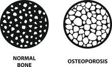 Osteoporosis Icon ,Bone Structure, Vector Illustration