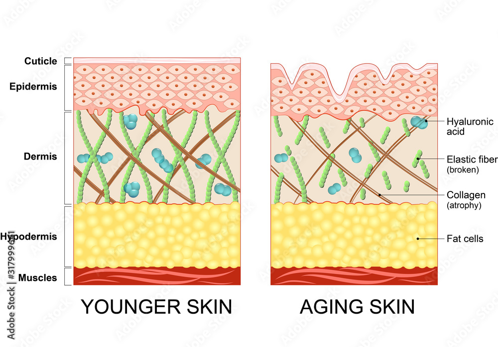 Fototapeta The diagram of younger skin and aging skin showing the decrease in collagen and broken elastin in older skin.