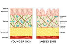 The Diagram Of Younger Skin An...