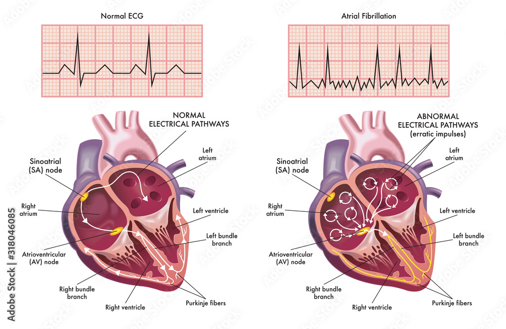 Fototapeta Medical illustration showing the symptoms of a heart with atrial fibrillation compared to normal one.