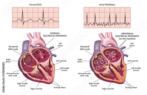 Medical illustration showing the symptoms of a heart with atrial fibrillation compared to normal one Wallpaper Mural