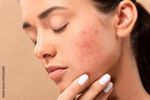 Photo young woman with closed eyes touching face with acne isolated on beige