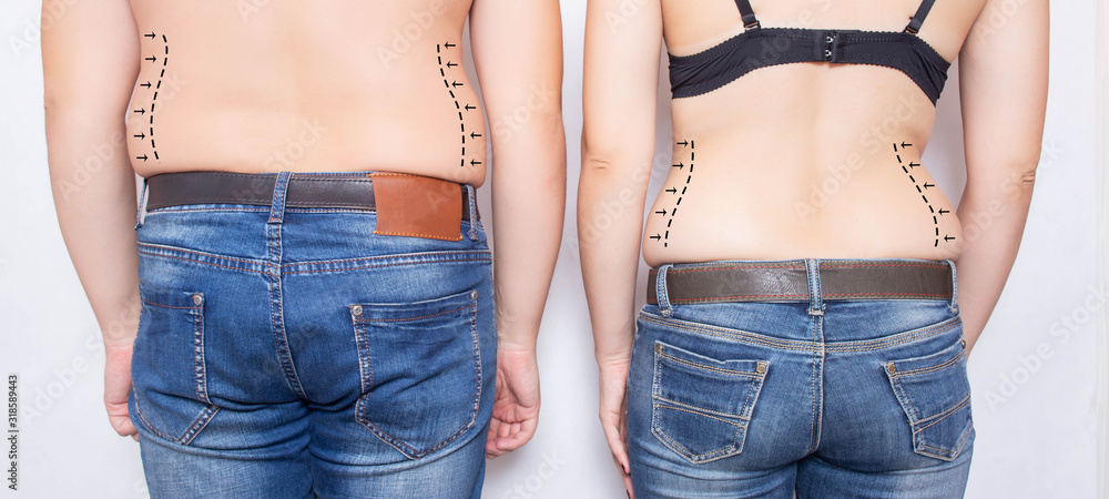 Fototapeta Married couple man and girl with obesity on their sides. Concept of plastic surgery to remove fat on the abdomen and sides, liposuction, beauty saloon