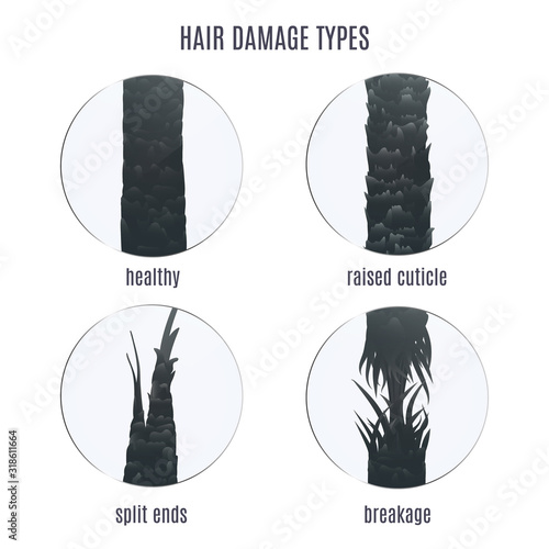 Obraz Surface of healthy and damaged hair under the microscope. Hair follicle condition closeup set. Problem of split ends, breakage and raised cuticle. Trichology medical concept. Vector illustration. - fototapety do salonu