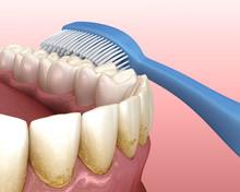 Toothbrush Cleaning Teeth. Med...