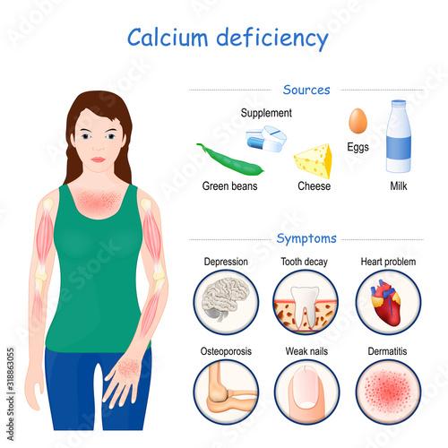 Cuadros en Lienzo calcium deficiency. Sign, symptoms, and Sources