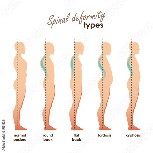 Fotomural Spinal deformity types