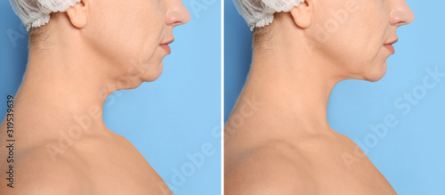 Fotomural Mature woman before and after plastic surgery operation on blue background, closeup