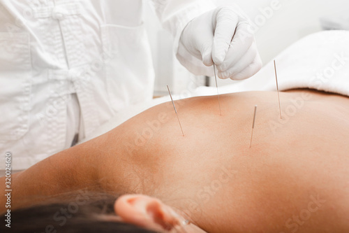 Photo Osteochondrosis treatment with acupuncture