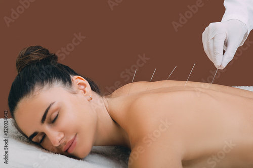 woman relaxes from acupuncture procedure Canvas Print