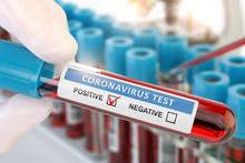Coronavirus 2019 NCoV Positive...