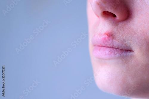 Herpes virus on human lips Canvas Print