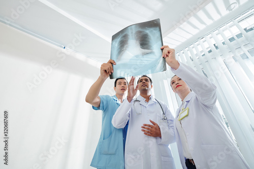 Fototapeta Serious doctors holding chest x-ray of person and trying to find firsts signs of terminal disease obraz