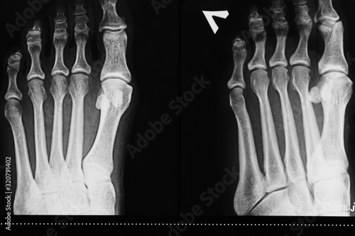 Photo X-ray of the left foot of a person's leg, determination of injury, arthrosis dis