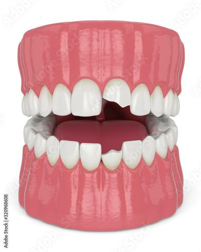 Obraz na płótnie 3d render of jaw with broken incisors teeth