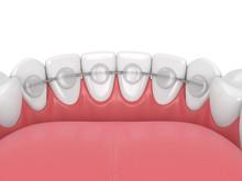 3d Render Of Dental Bonded Ret...