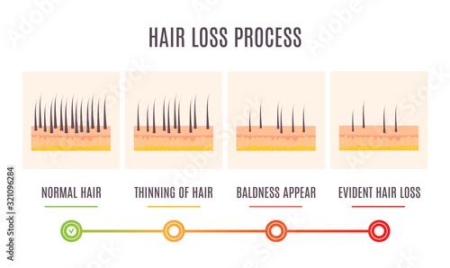 Vászonkép Hair loss process infographic of scalp close up with receding hair follicles