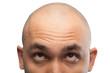 Leinwanddruck Bild - Photo of shaved man looking up, half head