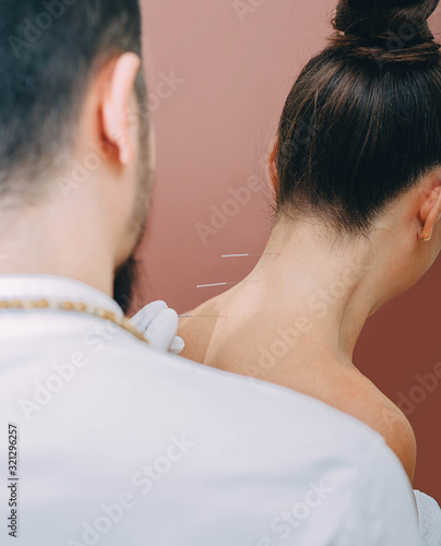 Photo Acupuncturist punctures needle at special points on the back and is very accurate