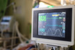 Medical monitor screen in ICU room that show patient vital sign and others parameter concern with medical