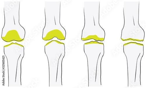変形性膝関節症が悪化する流れのベクターイラスト Canvas Print