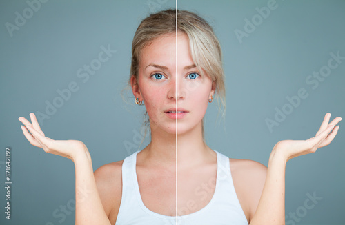 Fototapeta Young Woman with hands raised. Perfect Skin and Skin Problem. Unhealthy and Healthy Skin After Treatment. Facial Treatment, Medicine and Cosmetology Concept obraz