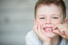 Teenager Child With A Tooth Dr...