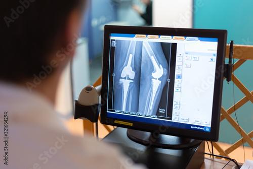 Photo Service radiologie médical manipulateur controle radio prothèse de genou sur écr