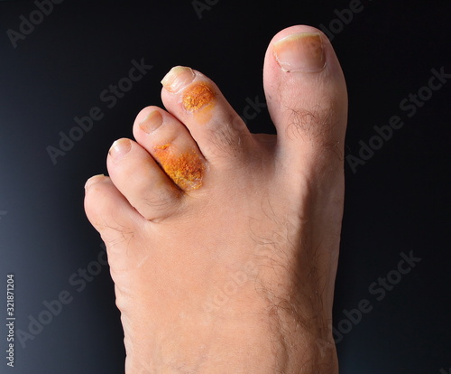 closeup of part of the human foot with arthritis and arthrosis on black backgrou Canvas Print