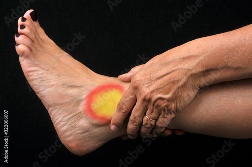 Photo Douleur à la cheville