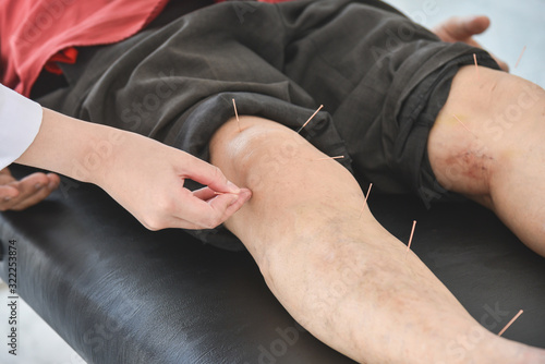 A man recieving acupuncture at knee and legs for relief pain ,Alternative medicine concept Canvas Print
