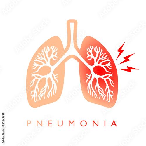 Lungs pneumonia vector icon Wallpaper Mural