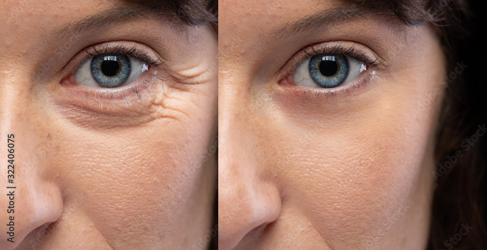 Fototapeta Woman eyes before and after an anti age treatment for wrinkles and crow's feet