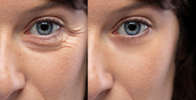 Woman Eyes Before And After An...