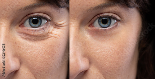 Fotografie, Tablou Woman eyes before and after an anti age treatment for wrinkles and crow's feet